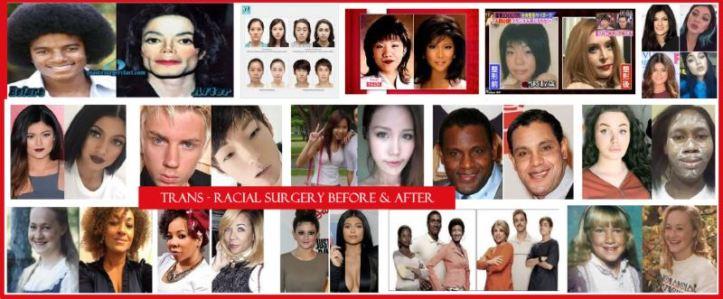 Trans Race Surgery Trump Healthcare